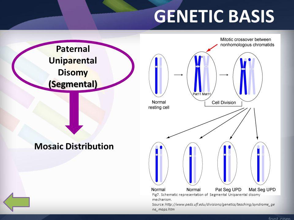 GENETIC BASIS (Segmental) Paternal Uniparental Disomy (Segmental) Mosaic Distribution Fig7.