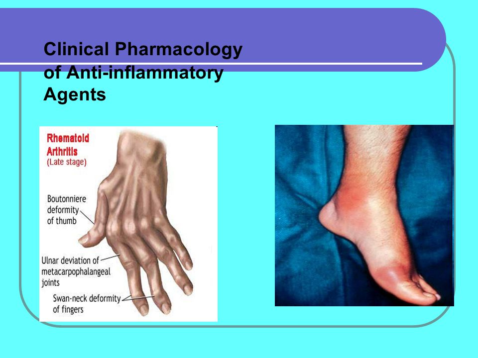 Clinical Pharmacology of Anti-inflammatory Agents