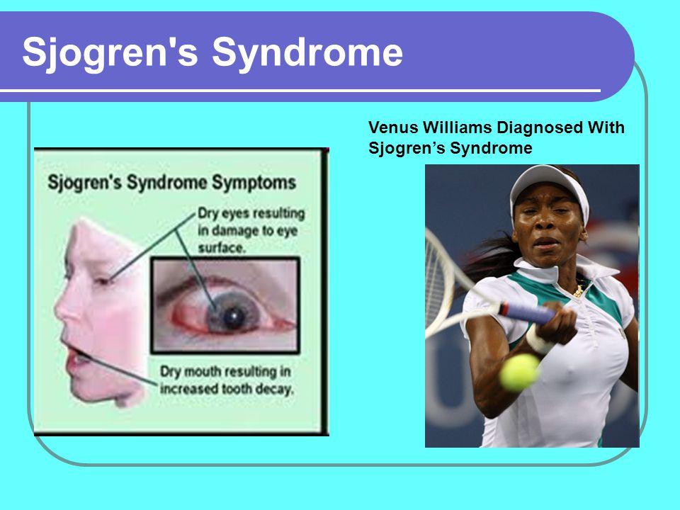 Sjogren s Syndrome Venus Williams Diagnosed With Sjogren's Syndrome