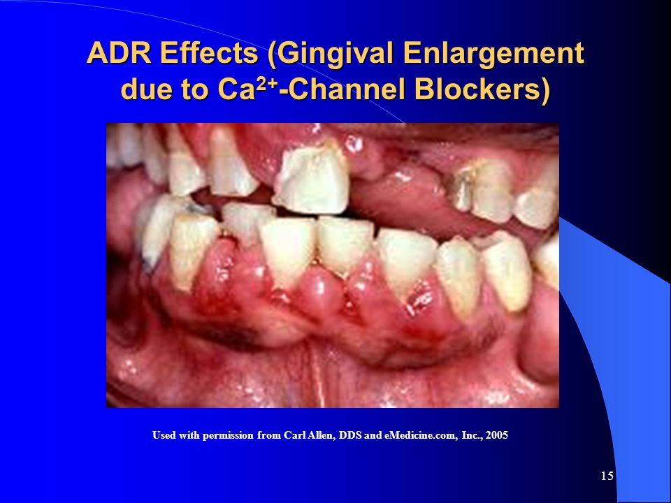 15 ADR Effects (Gingival Enlargement due to Ca 2+ -Channel Blockers) Used with permission from Carl Allen, DDS and eMedicine.com, Inc., 2005