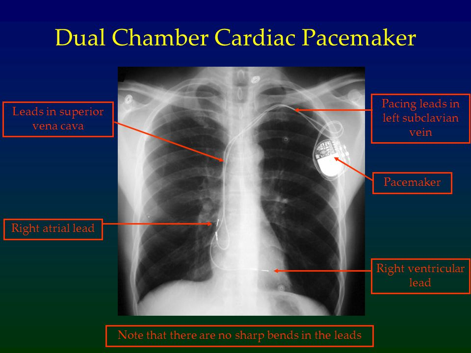 Dual Chamber Cardiac Pacemaker Pacemaker Pacing leads in left subclavian vein Leads in superior vena cava Right ventricular lead Right atrial lead Note that there are no sharp bends in the leads