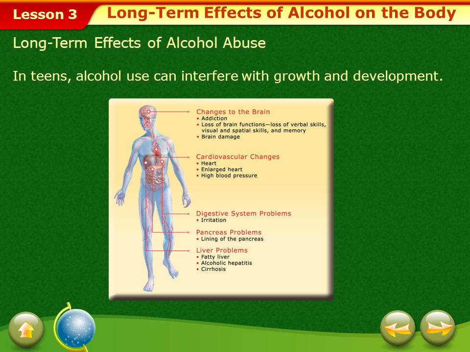 Lesson 3 Relate the nation's health goals in Healthy People 2010 to reducing injury, death, and disease caused by alcohol-related influences.