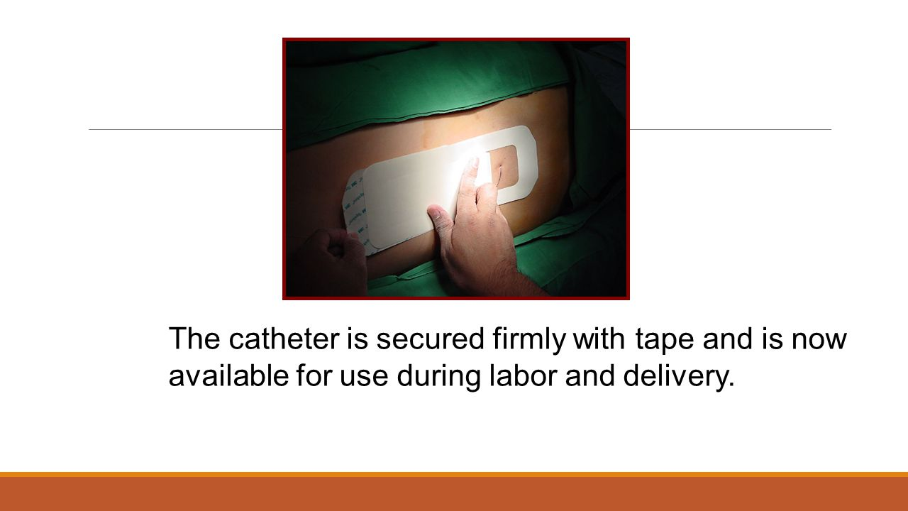 The catheter is secured firmly with tape and is now available for use during labor and delivery.