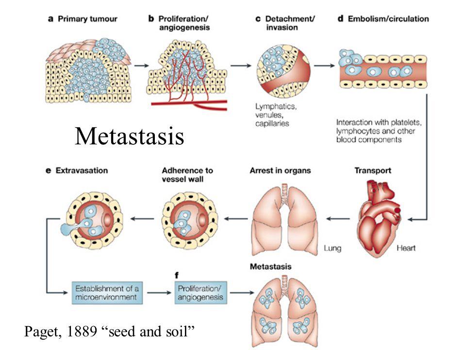 Metastasis Paget, 1889 seed and soil