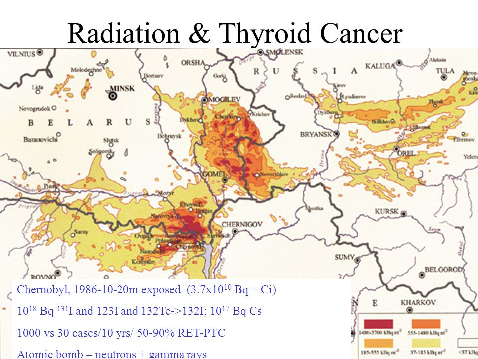 Radiation & Thyroid Cancer Chernobyl, 1986-10-20m exposed (3.7x10 10 Bq = Ci) 10 18 Bq 131 I and 123I and 132Te->132I; 10 17 Bq Cs 1000 vs 30 cases/10 yrs/ 50-90% RET-PTC Atomic bomb – neutrons + gamma rays