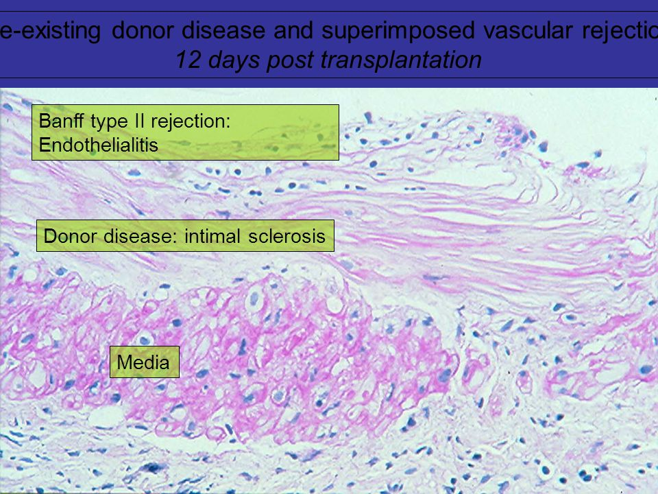 Pre-existing donor disease and superimposed vascular rejection: 12 days post transplantation Media Donor disease: intimal sclerosis Banff type II rejection: Endothelialitis