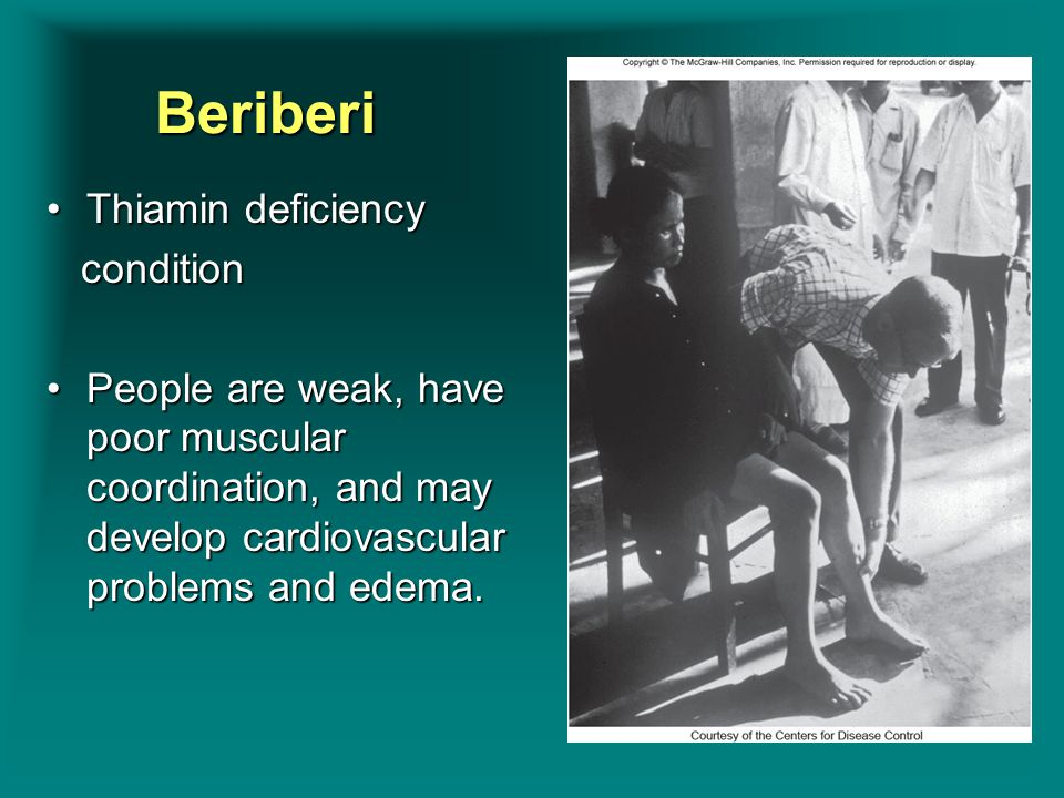 Beriberi Thiamin deficiencyThiamin deficiency condition condition People are weak, have poor muscular coordination, and may develop cardiovascular pro