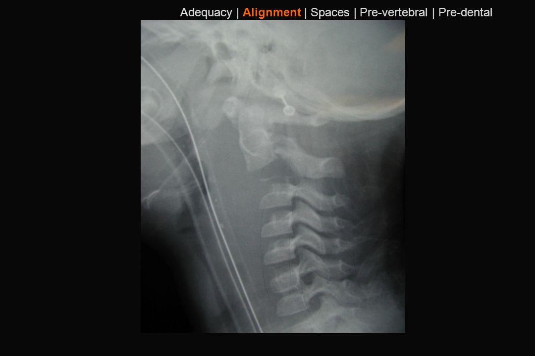 100 Adequacy | Alignment | Spaces | Pre-vertebral | Pre-dental