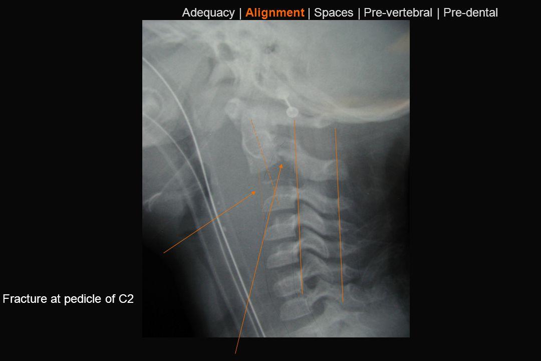 101 Fracture at pedicle of C2 Adequacy | Alignment | Spaces | Pre-vertebral | Pre-dental