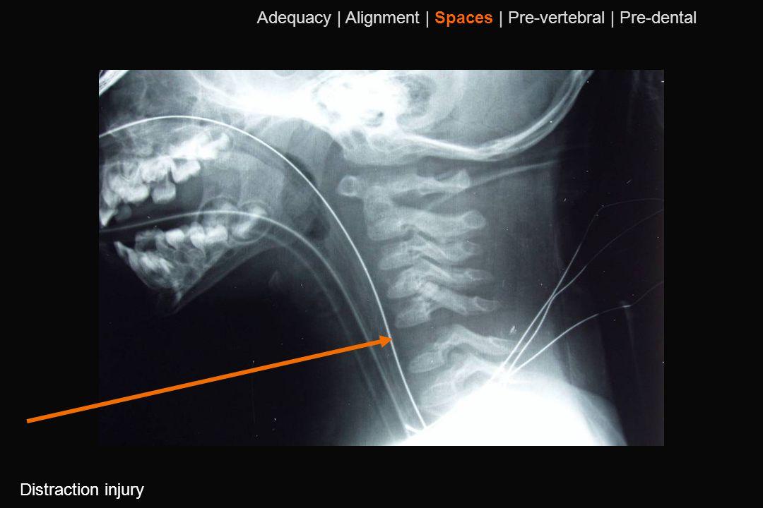 104 Distraction injury Adequacy | Alignment | Spaces | Pre-vertebral | Pre-dental