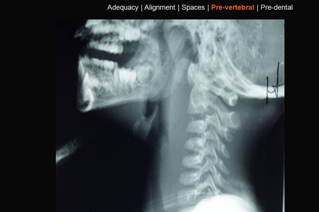 107 Adequacy | Alignment | Spaces | Pre-vertebral | Pre-dental