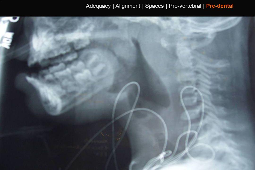 110 Adequacy | Alignment | Spaces | Pre-vertebral | Pre-dental