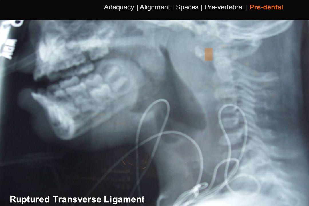 111 Adequacy | Alignment | Spaces | Pre-vertebral | Pre-dental Ruptured Transverse Ligament