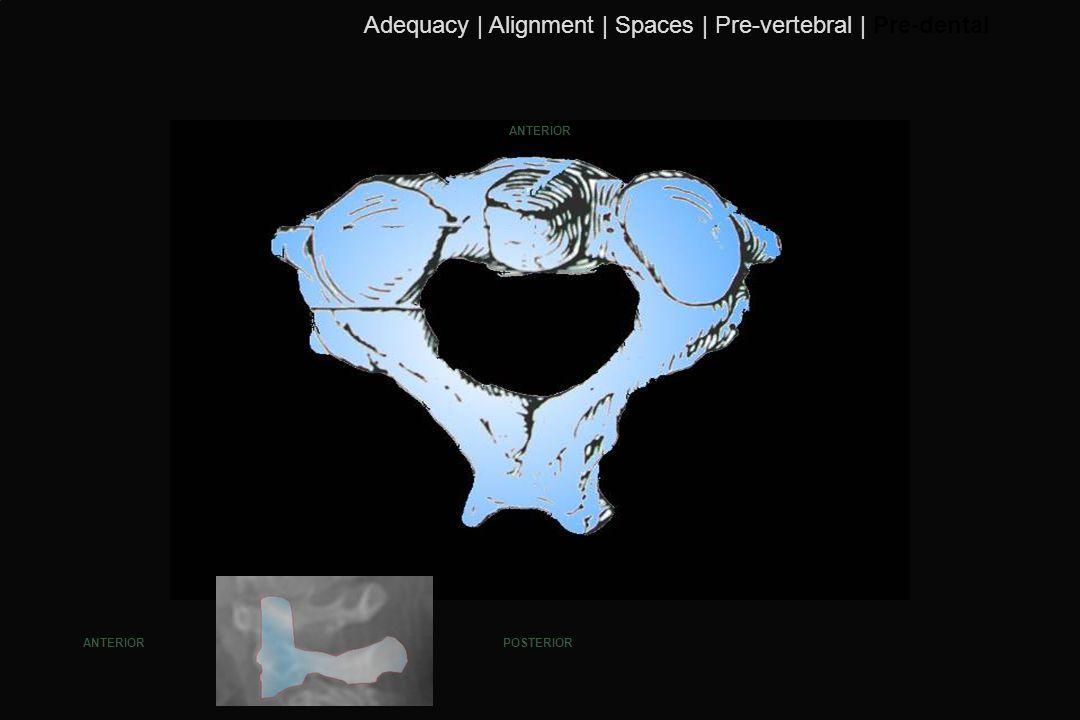 114 ANTERIOR POSTERIORANTERIOR Adequacy | Alignment | Spaces | Pre-vertebral | Pre-dental