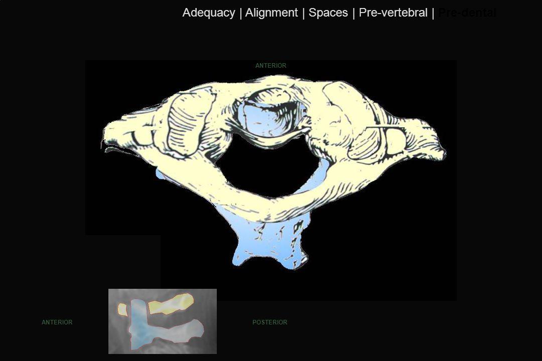 115 ANTERIOR POSTERIORANTERIOR Adequacy | Alignment | Spaces | Pre-vertebral | Pre-dental