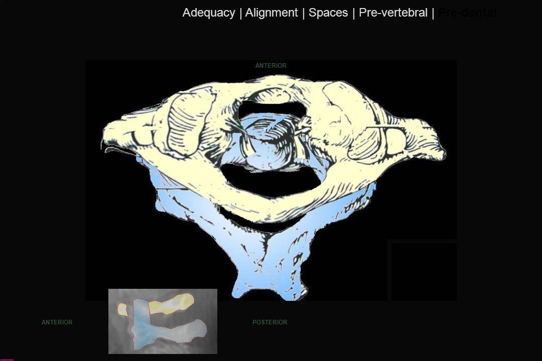 116 ANTERIOR POSTERIOR Adequacy | Alignment | Spaces | Pre-vertebral | Pre-dental