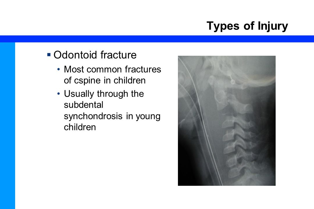 46 Types of Injury  Odontoid fracture Most common fractures of cspine in children Usually through the subdental synchondrosis in young children