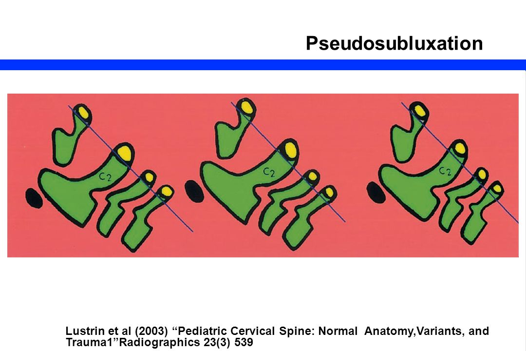 "51 Pseudosubluxation Lustrin et al (2003) ""Pediatric Cervical Spine: Normal Anatomy,Variants, and Trauma1""Radiographics 23(3) 539"