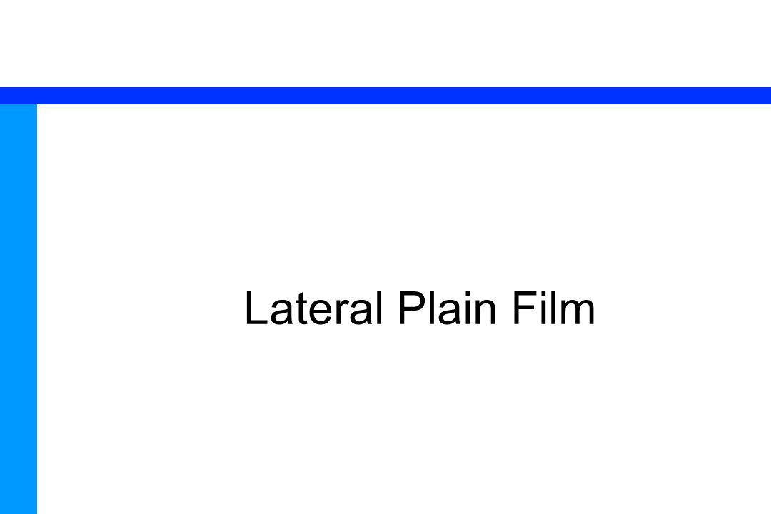 76 Lateral Plain Film