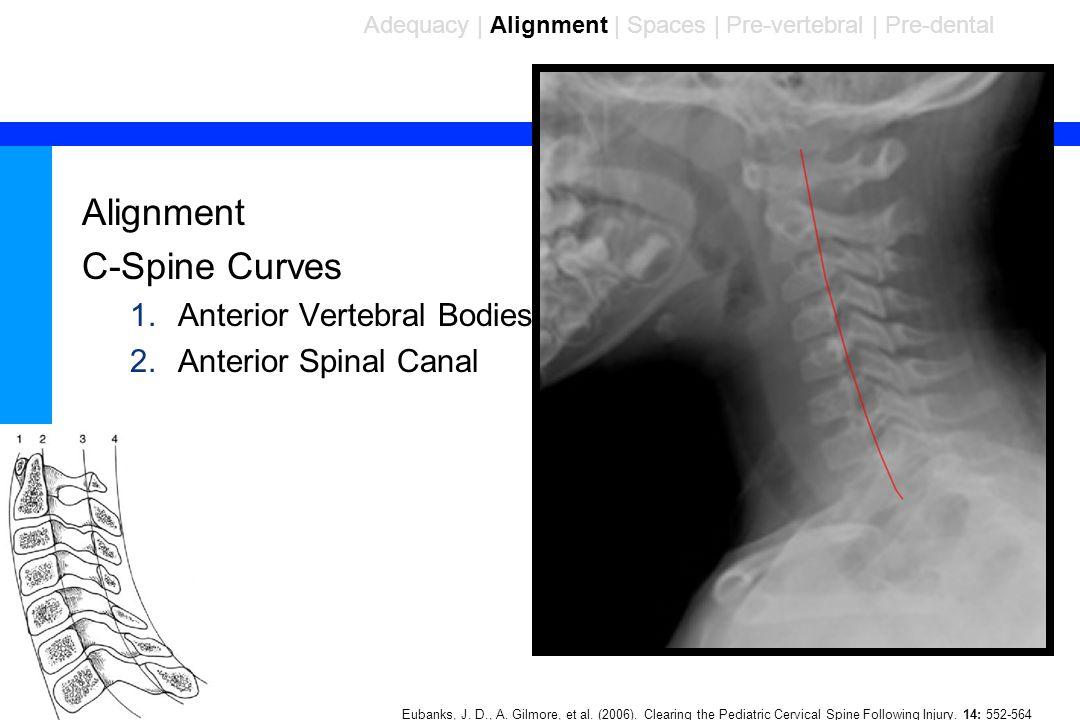 85 Alignment C-Spine Curves 1.Anterior Vertebral Bodies 2.Anterior Spinal Canal Adequacy | Alignment | Spaces | Pre-vertebral | Pre-dental Eubanks, J.