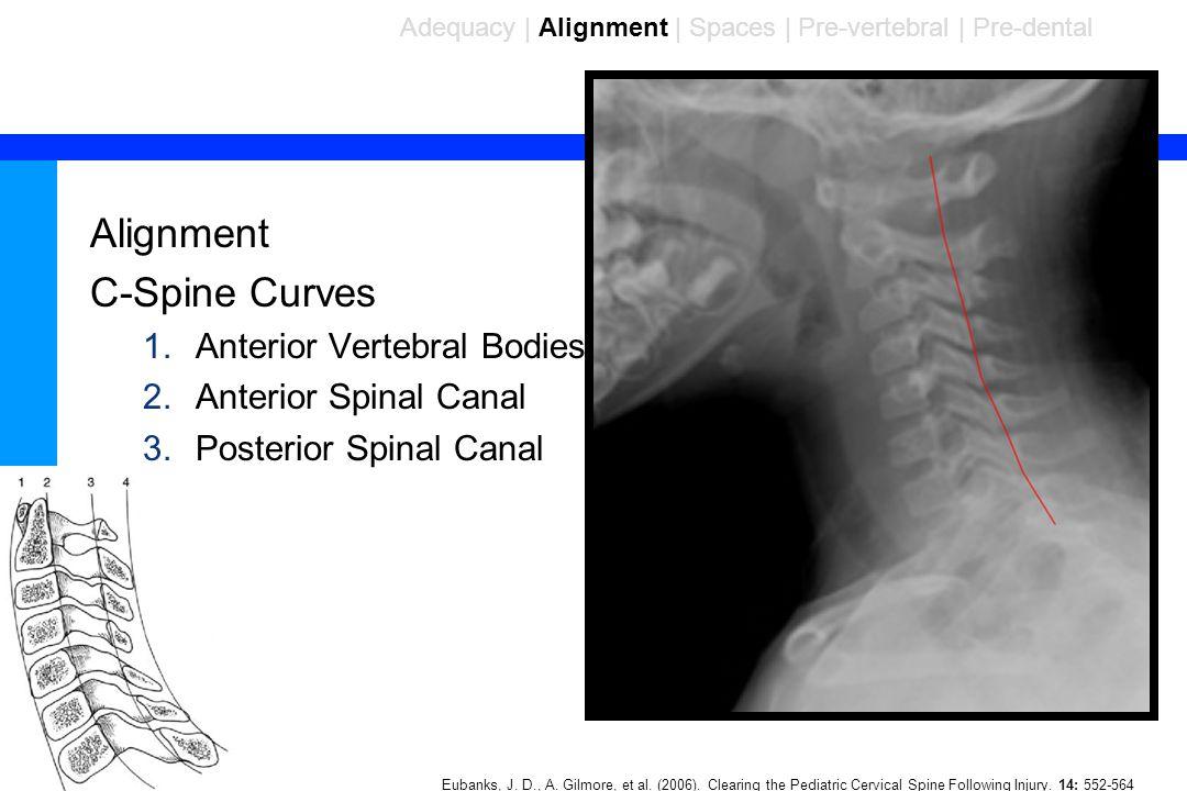 86 Alignment C-Spine Curves 1.Anterior Vertebral Bodies 2.Anterior Spinal Canal 3.Posterior Spinal Canal Adequacy | Alignment | Spaces | Pre-vertebral