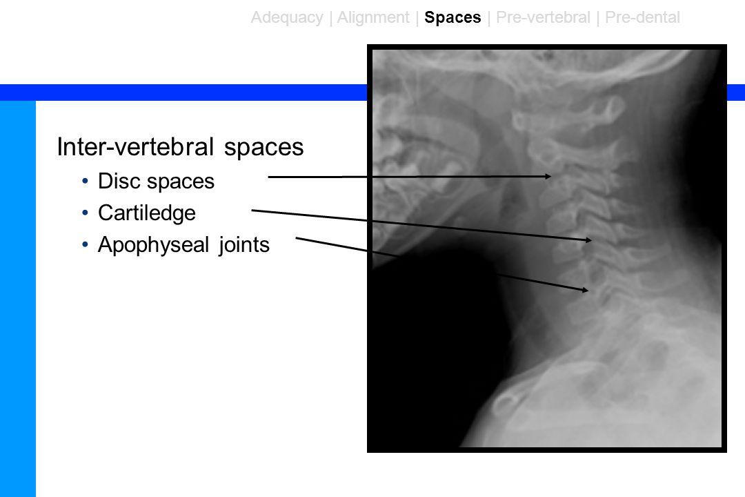 88 Inter-vertebral spaces Disc spaces Cartiledge Apophyseal joints Adequacy | Alignment | Spaces | Pre-vertebral | Pre-dental