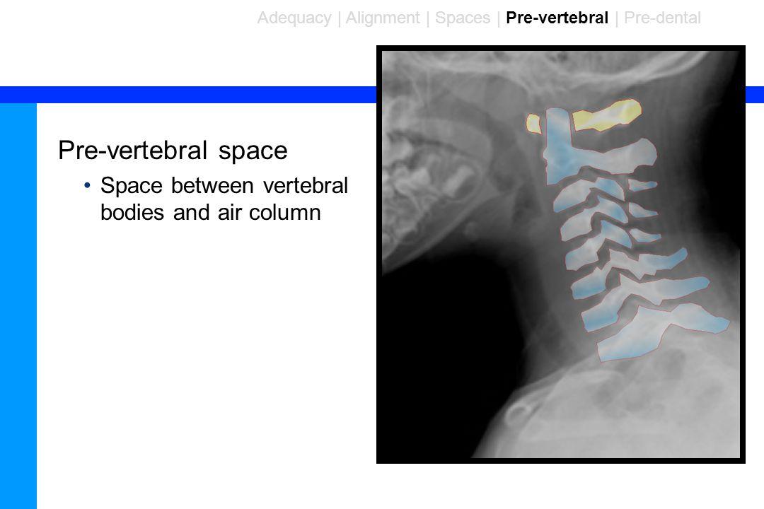 90 Pre-vertebral space Space between vertebral bodies and air column Adequacy | Alignment | Spaces | Pre-vertebral | Pre-dental