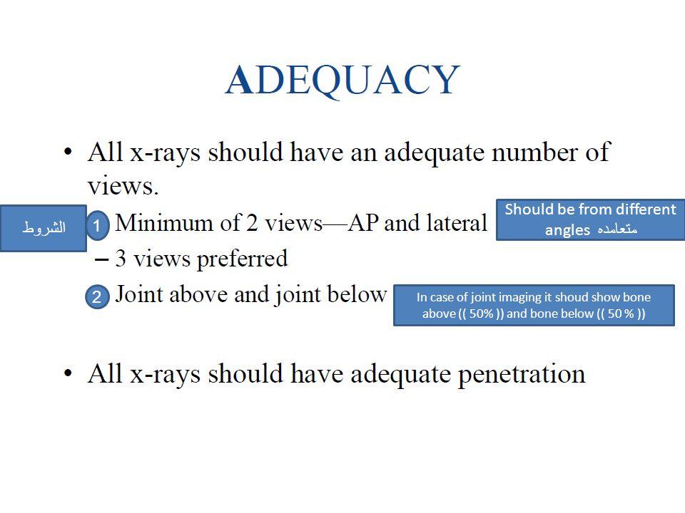الشروط 1 2 Should be from different angles متعامده In case of joint imaging it shoud show bone above (( 50% )) and bone below (( 50 % ))