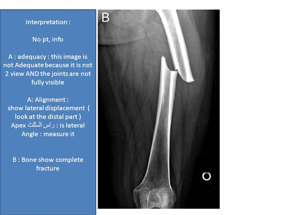 Interpretation : No pt, info A : adequacy : this image is not Adequate because it is not 2 view AND the joints are not fully visible A: Alignment : show lateral displacement ( look at the distal part ) Apex راس المثلث : is lateral Angle : measure it B : Bone show complete fracture