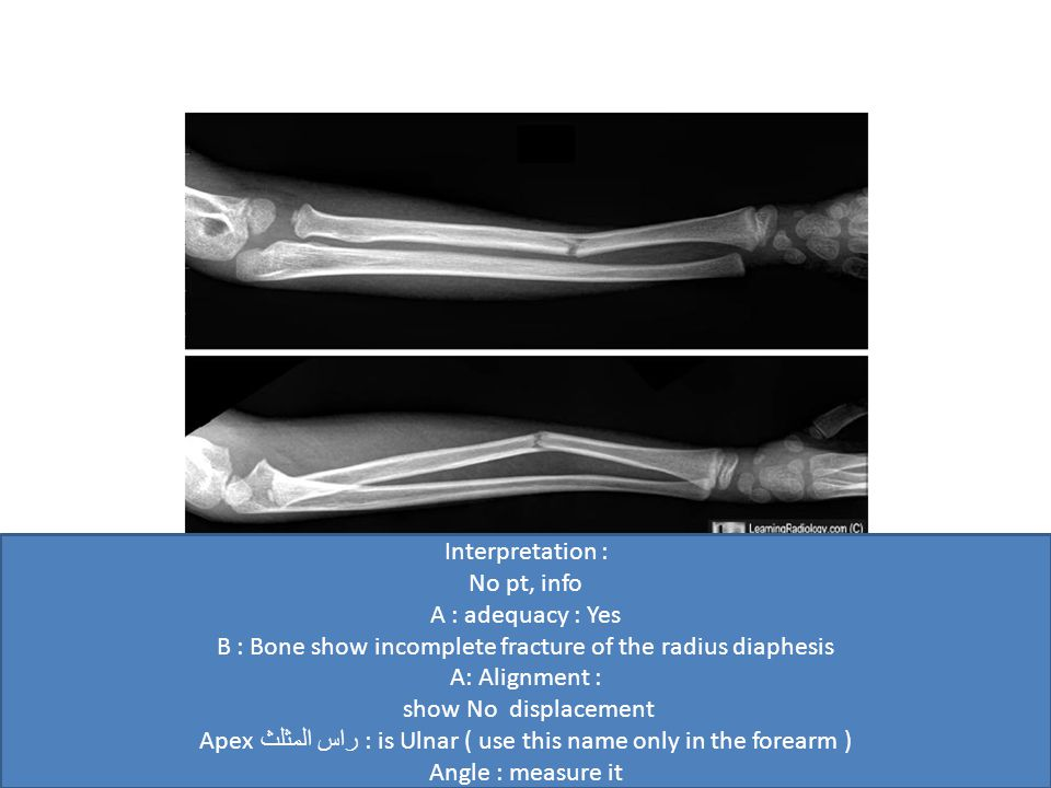Interpretation : No pt, info A : adequacy : Yes B : Bone show incomplete fracture of the radius diaphesis A: Alignment : show No displacement Apex راس المثلث : is Ulnar ( use this name only in the forearm ) Angle : measure it