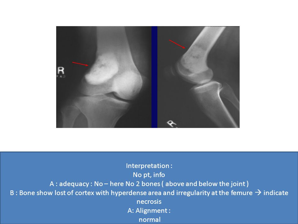Interpretation : No pt, info A : adequacy : No – here No 2 bones ( above and below the joint ) B : Bone show lost of cortex with hyperdense area and irregularity at the femure  indicate necrosis A: Alignment : normal