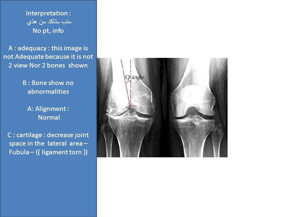 Interpretation : منب متاكد من هذي No pt, info A : adequacy : this image is not Adequate because it is not 2 view Nor 2 bones shown B : Bone show no abnormalities A: Alignment : Normal C : cartilage : decrease joint space in the lateral area – Fubula – (( ligament torn ))