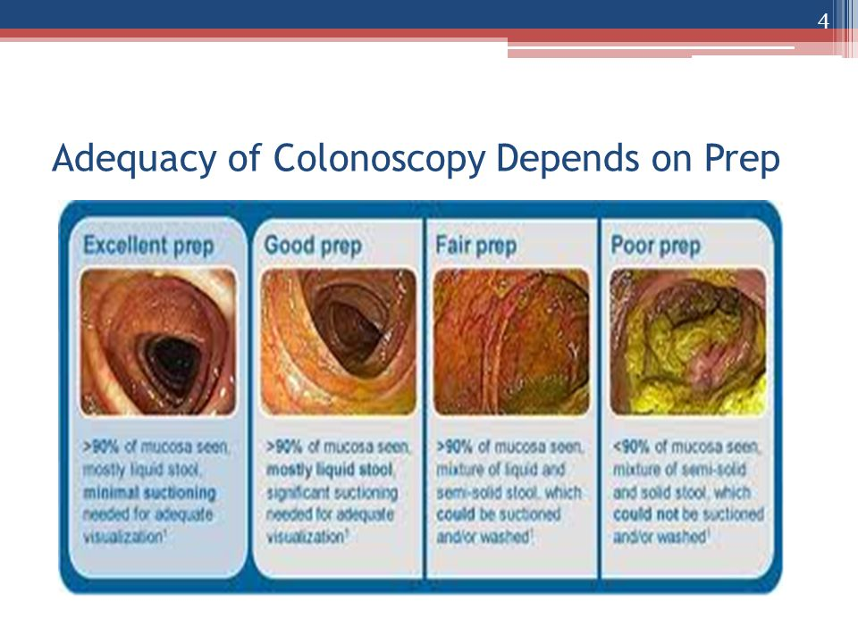 Adequacy of Colonoscopy Depends on Prep 4