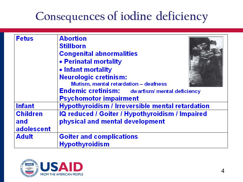 Co nsequen ces of iodine deficiency 44