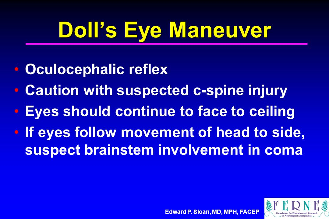 Edward P. Sloan, MD, MPH, FACEP Doll's Eye Maneuver Oculocephalic reflex Caution with suspected c-spine injury Eyes should continue to face to ceiling