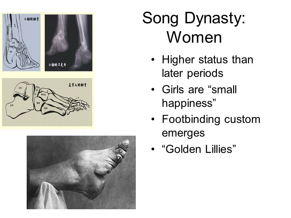 Song Dynasty: Women Higher status than later periods Girls are small happiness Footbinding custom emerges Golden Lillies