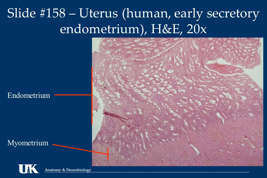 Anatomy & Neurobiology Slide #158 – Uterus (human, early secretory endometrium), H&E, 20x Endometrium Myometrium