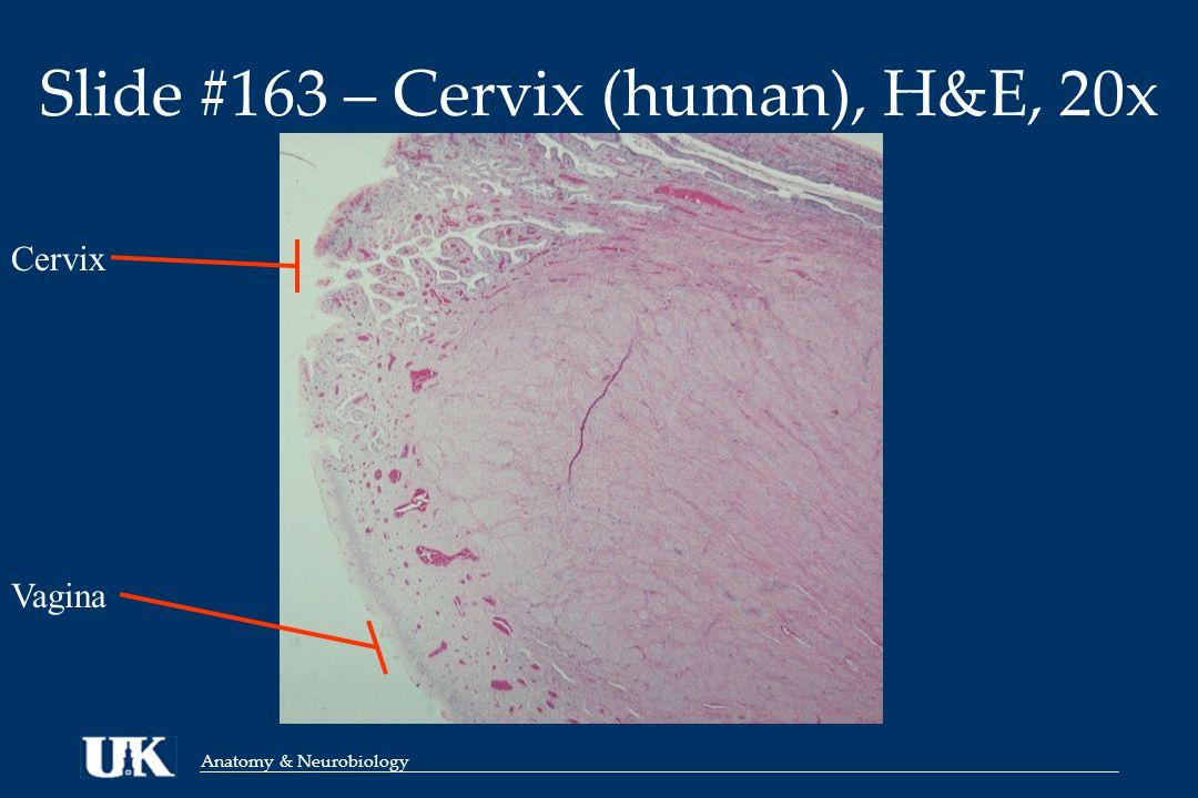 Anatomy & Neurobiology Slide #163 – Cervix (human), H&E, 100x Cervix (with glands) Vagina (without glands)