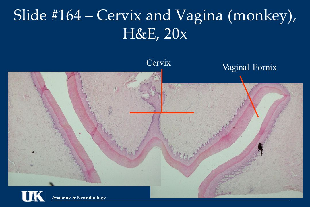 Anatomy & Neurobiology Slide #164 – Cervix and Vagina (monkey), H&E, 20x Cervix Vaginal Fornix