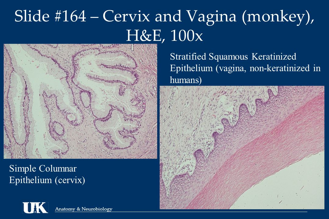 Anatomy & Neurobiology Slide #164 – Cervix and Vagina (monkey), H&E, 100x Simple Columnar Epithelium (cervix) Stratified Squamous Keratinized Epithelium (vagina, non-keratinized in humans)