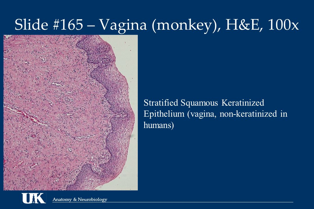 Anatomy & Neurobiology Slide #165 – Vagina (monkey), H&E, 100x Stratified Squamous Keratinized Epithelium (vagina, non-keratinized in humans)
