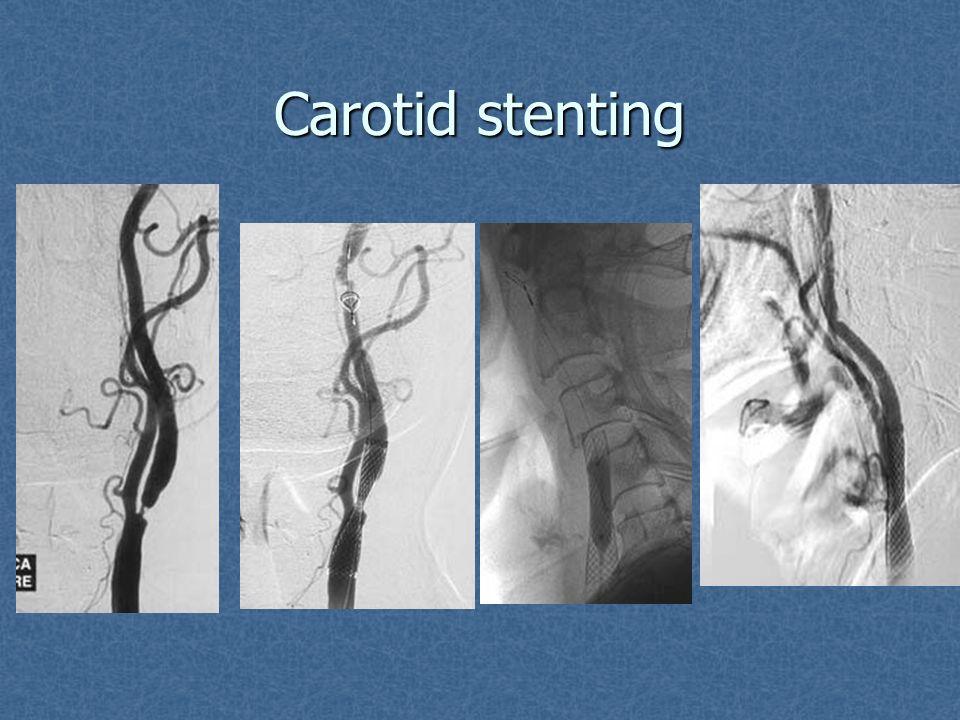 Carotid stenting