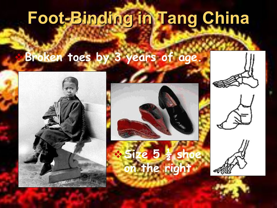 Foot-Binding in Tang China  Broken toes by 3 years of age.  Size 5 ½ shoe on the right