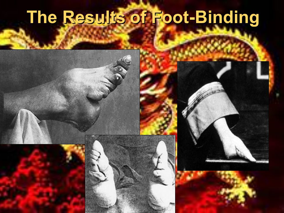 The Results of Foot-Binding