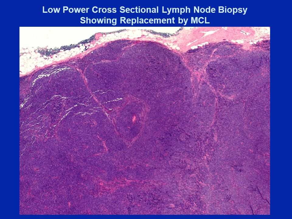 Low Power Cross Sectional Lymph Node Biopsy Showing Replacement by MCL