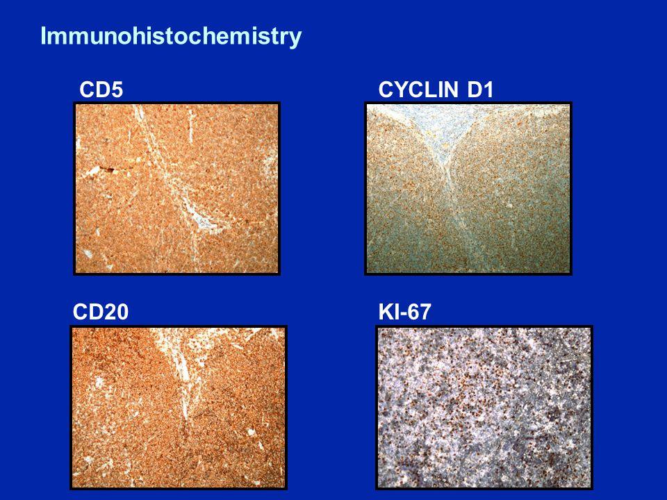 Immunohistochemistry CD5 CD20 CYCLIN D1 KI-67