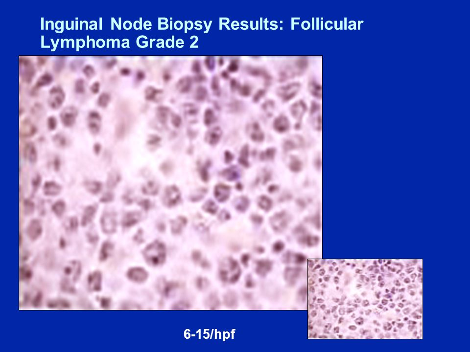 Eligibility Untreated Binet C CLL or Binet B or A with ≥ one of B-symptoms, progressive lymphocytosis, marrow failure; massive, progressive or painful splenomegaly; or massive lymph nodes or nodal clusters No 17p deletion by FISH FCR BR Phase III Trial of Combined Immunochemotherapy with FCR versus BR in Previously Untreated CLL Target Accrual = 550 (open) www.ClinicalTrials.gov, April 2011.