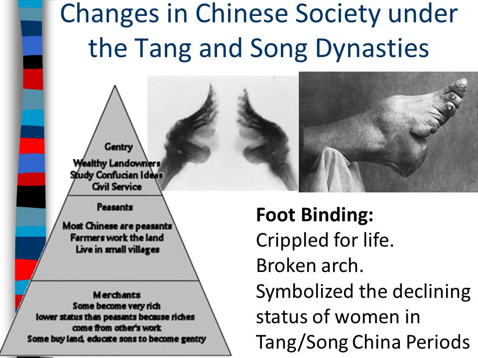 Changes in Chinese Society under the Tang and Song Dynasties Foot Binding: Crippled for life.