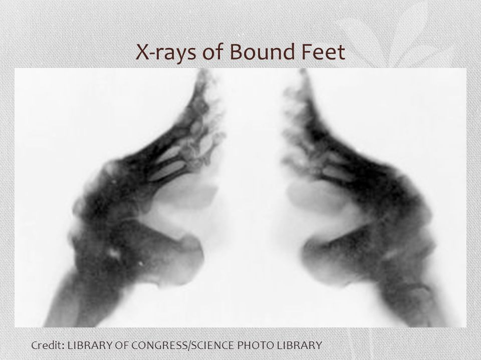 X-rays of Bound Feet Credit: LIBRARY OF CONGRESS/SCIENCE PHOTO LIBRARY