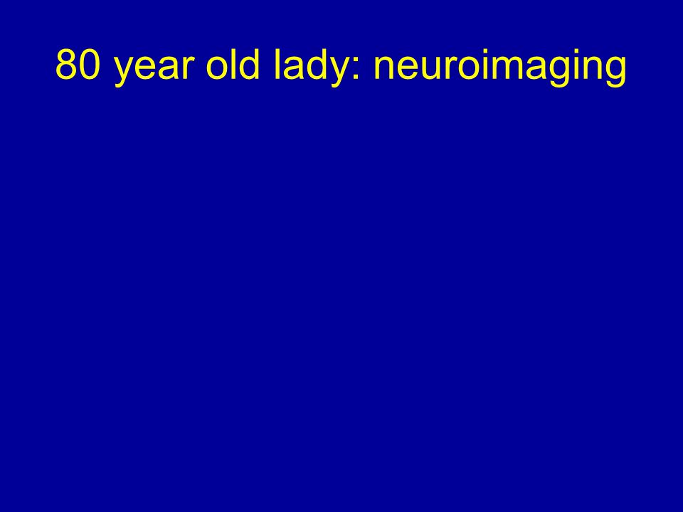 80 year old lady: neuroimaging